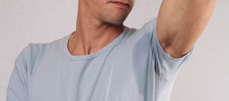 botox for underarm sweat