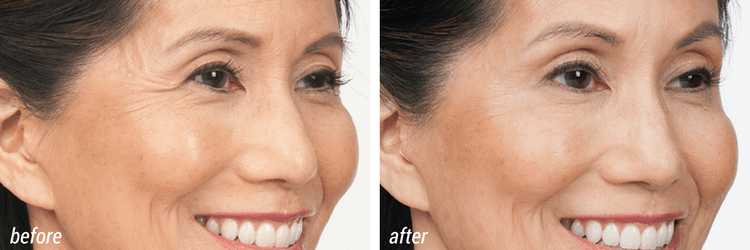 upper face cosmetic treatment