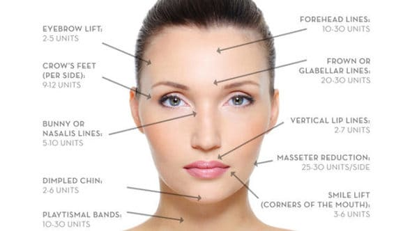 How Much Botox Do I Really Need? | RevitalizeMaui