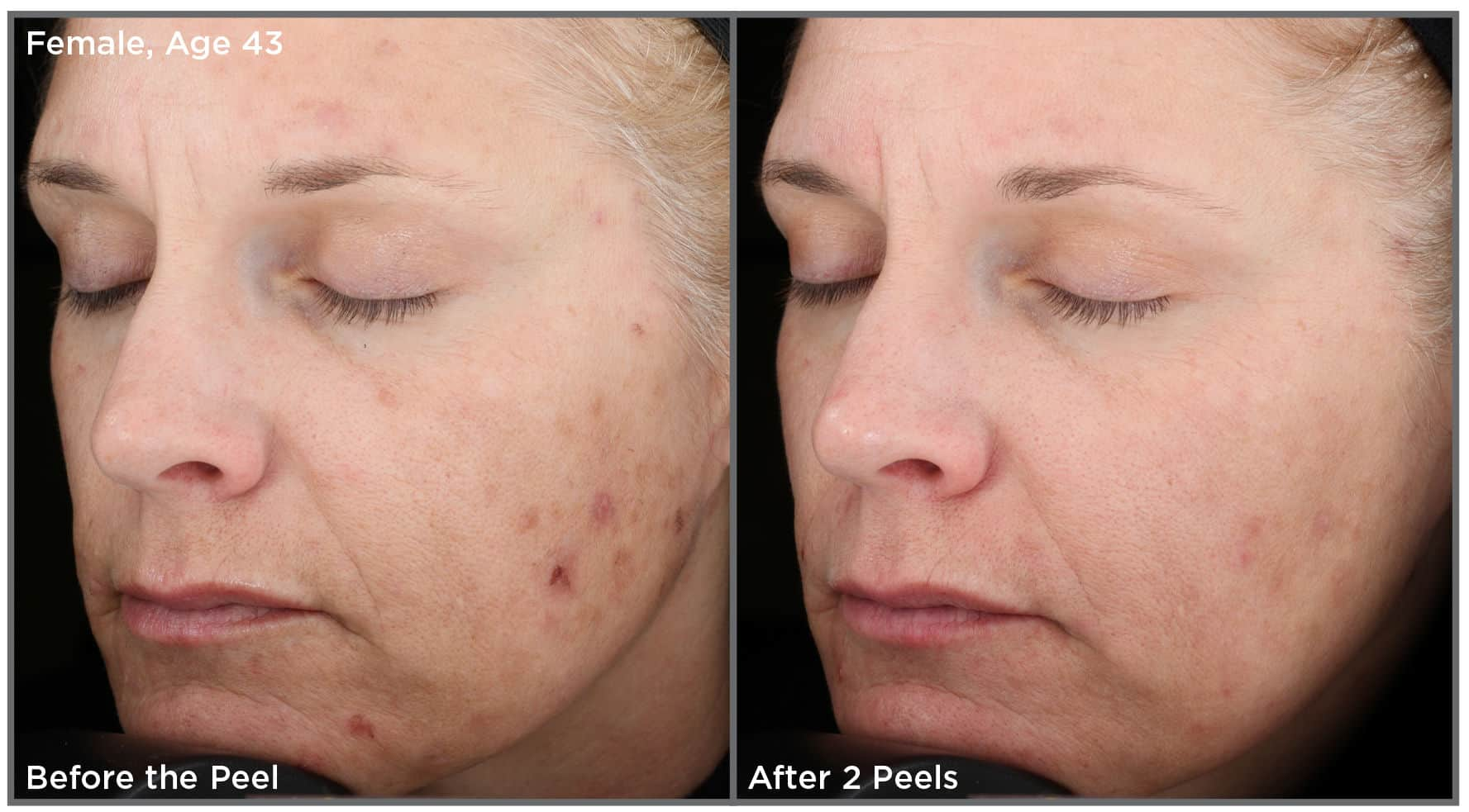 Vit Peel CS Female Age43 2 e1510702528316