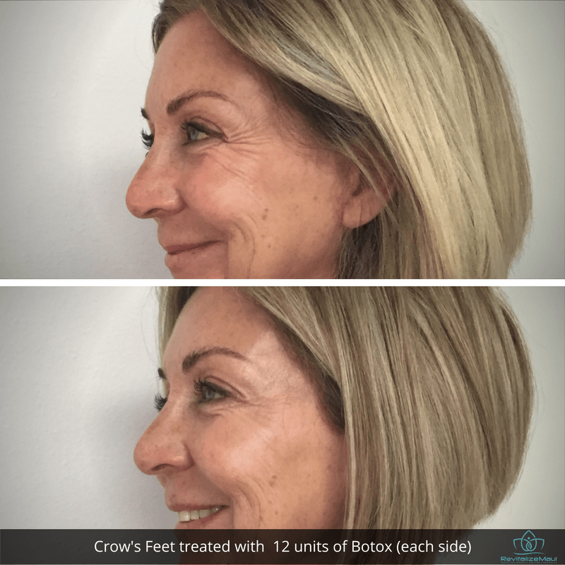 Before and After crows feet botox Lesley