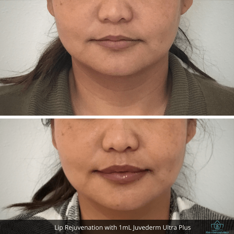 Before and After Mimi Lips Juvaderm Ultra Plus 1