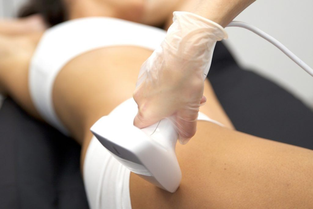 fractional skin resurfacing for your entire body