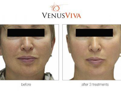 improved skin look after 3 treatments