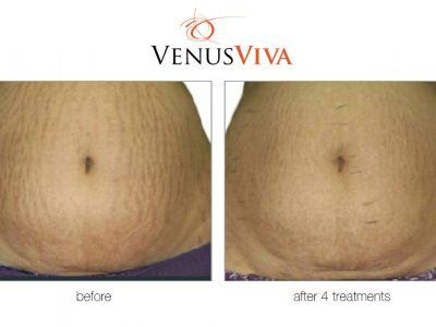 reduce stretch marks on the stomach