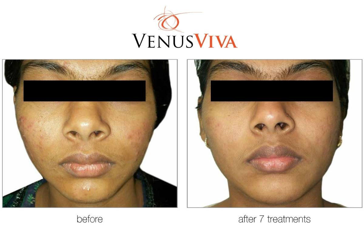 Reduce scars and burns on the face with therapy