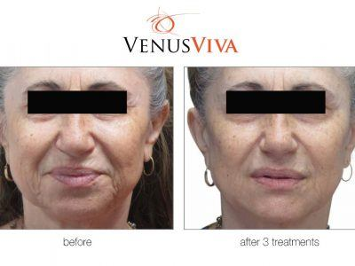 reduce wrinkles and deep lines on the face