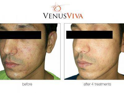 Improve skin repair after 4 treatments