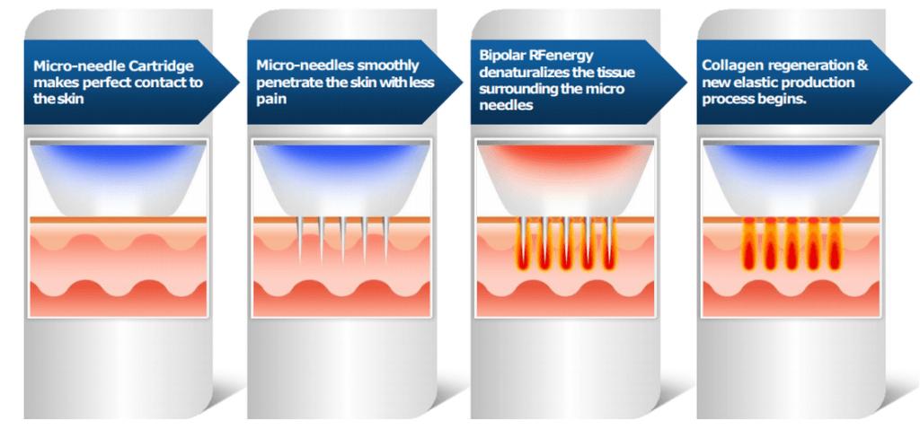 pixel 8 rf microneedling treatment