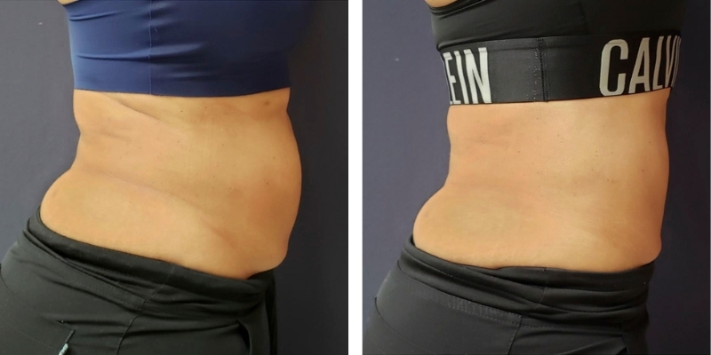 BodySculp Laser Lipolysis Treatment Before & After